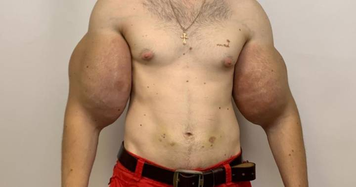 'popeye' Has 3 Pounds Of Dead Muscle Removed After Botched Bodybuilding Injections – National | Globalnews.ca